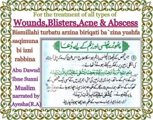 Dua for acne, wounds,blisters,abscess